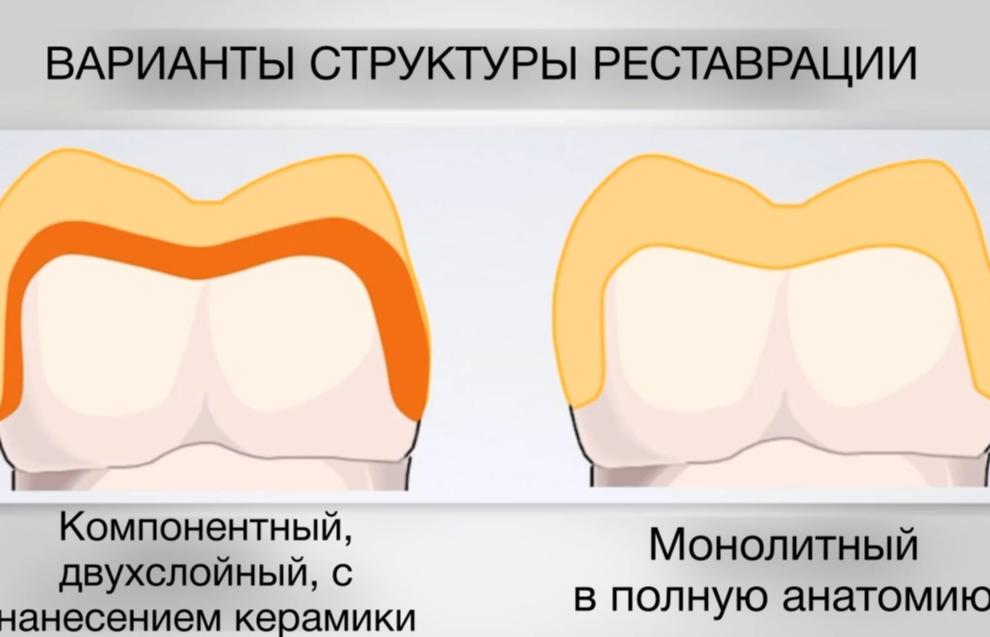 Обзор материалов в ортопедической стоматологии