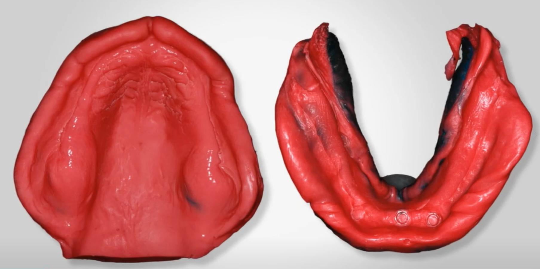 Техники снятия оттисков при полной потере зубов