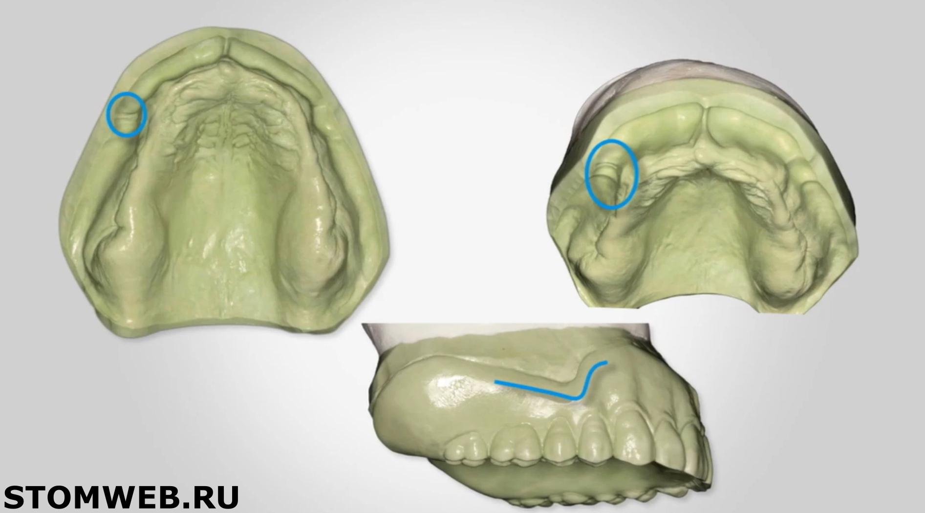 Анатомические особенности верхней челюсти