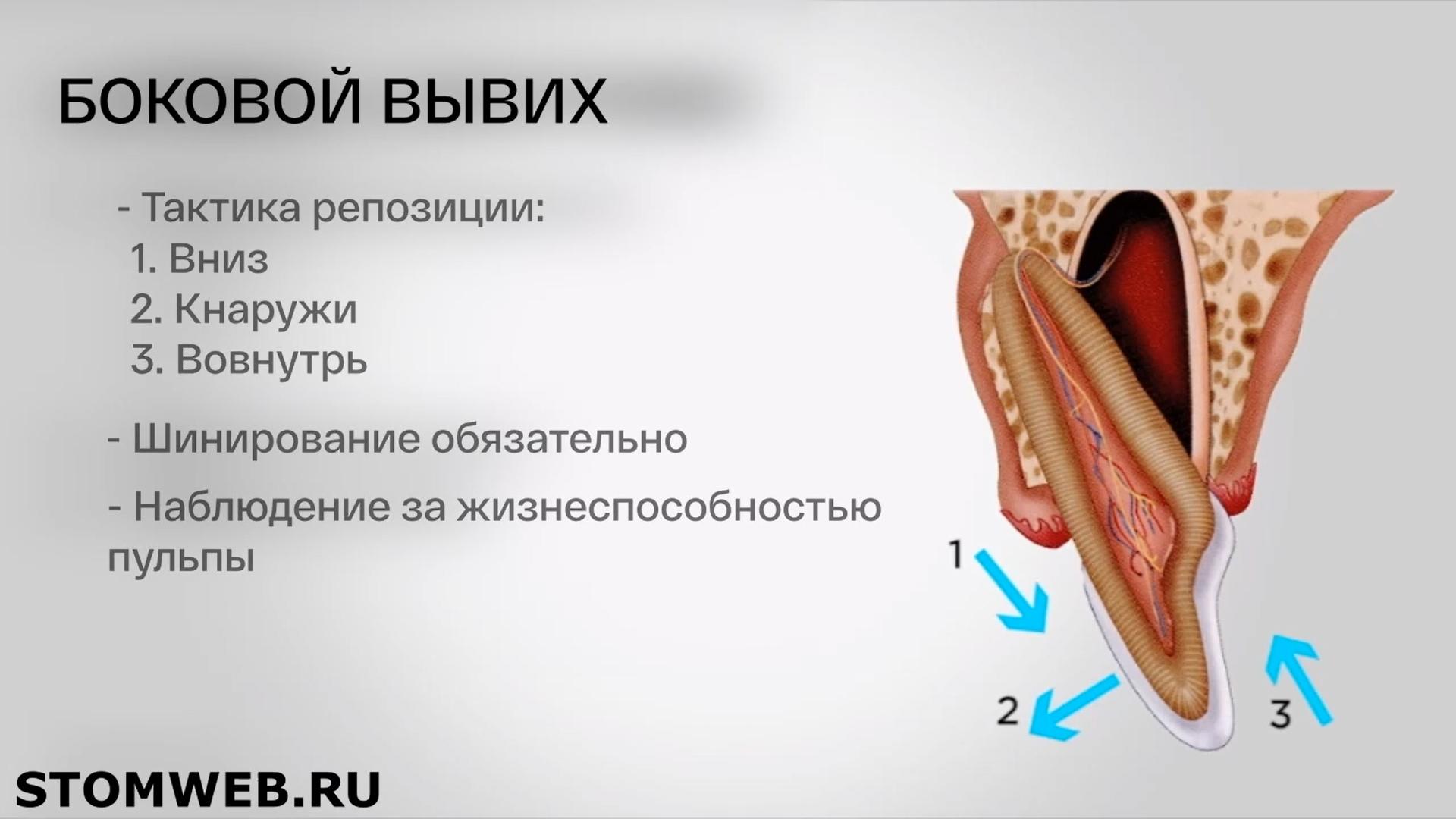 dentoalveolyarnye-travmy