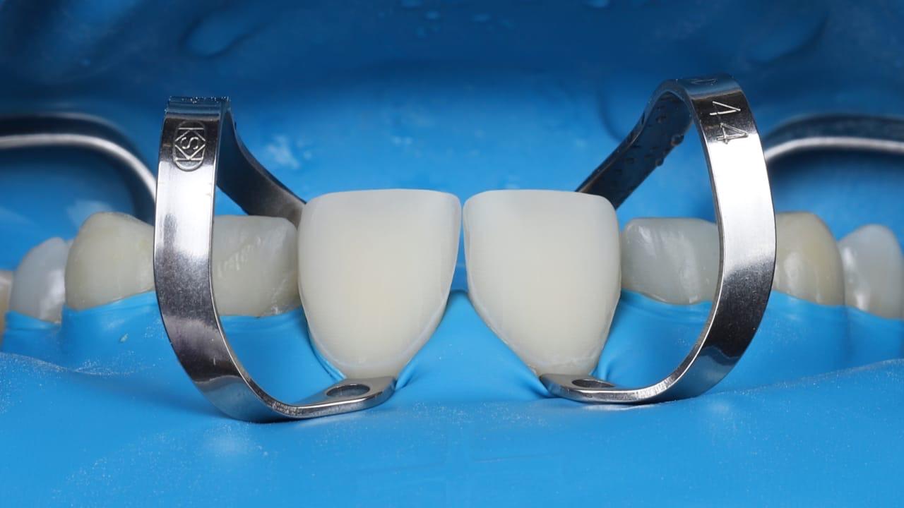 Адгезивные керамические реставрации, разбор клинических случаев