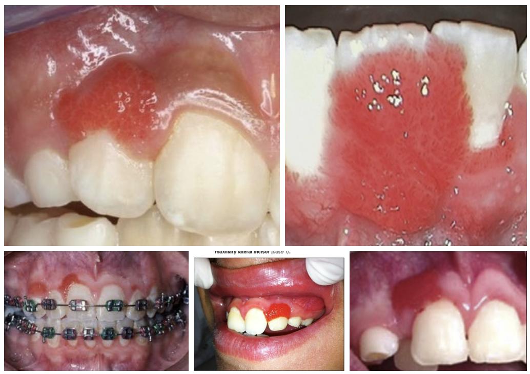 Стоматологический прием: Гепатит В, С, ВИЧ, туберкулез. Новообразования. Оценка риска, протоколы лечения»